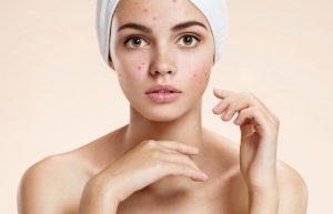 O que utilizar e como cuidar de pele com acne?